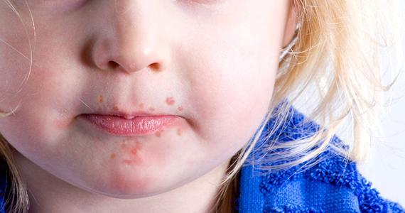 Hand-Fuß-Mund-Krankheit: Hochansteckend – meist harmlos